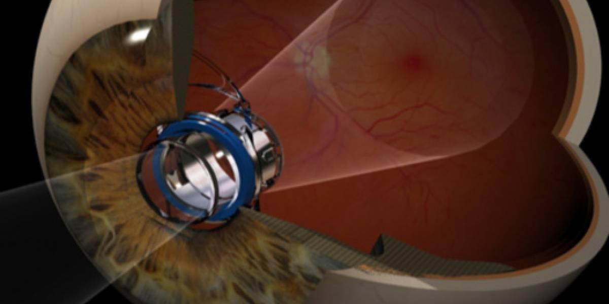 """Aprueban en EE.UU. los implantes de """"telescopios miniaturas"""" para ojos"""