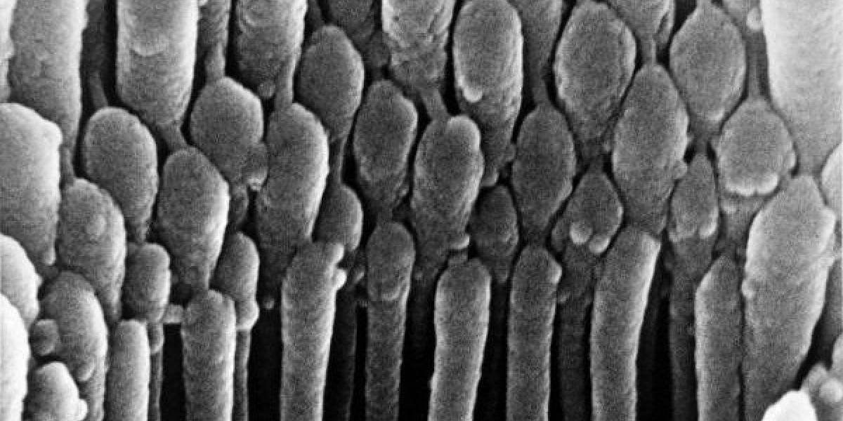 Sin Palabras: Imágenes microscópicas del interior del Cuerpo Humano