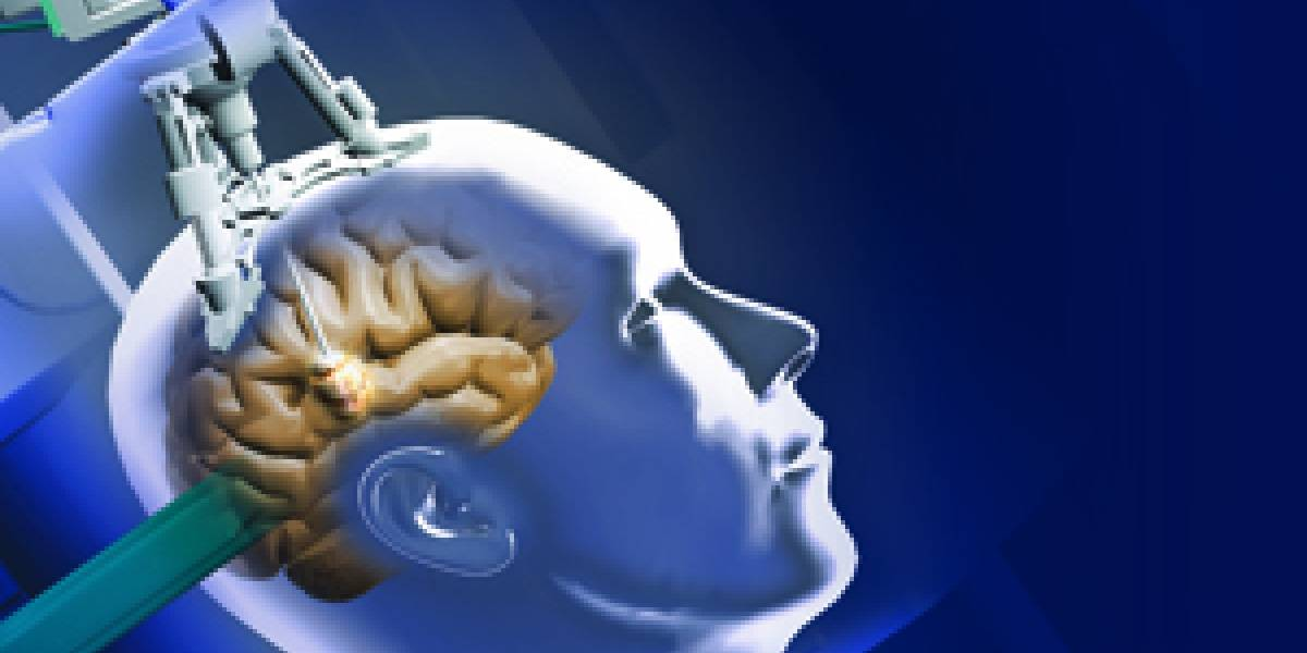 Neurocirujanos crean técnica para quemar tumores cerebrales