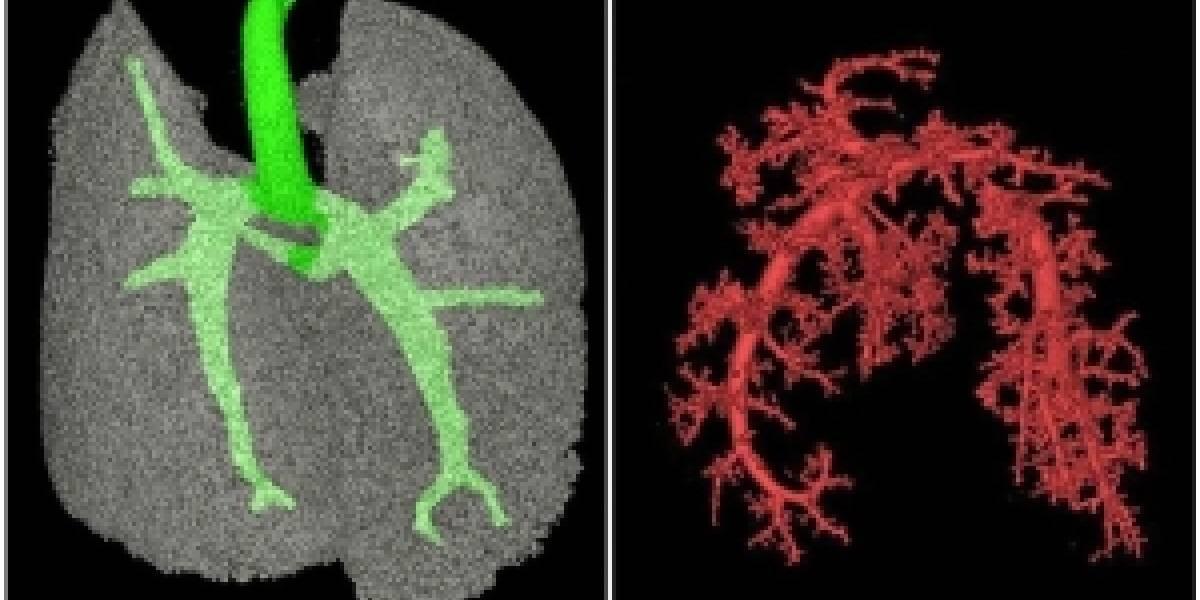 Científicos logran crear pulmones cultivados en el laboratorio