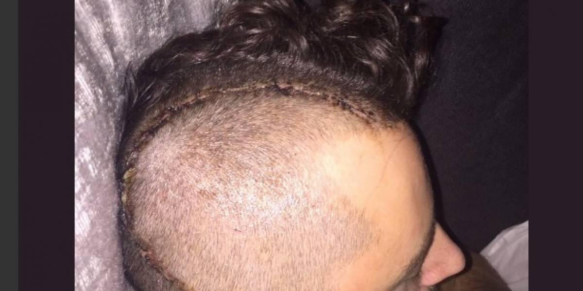 Así luce el futbolista que hace un año sufrió fractura de cráneo