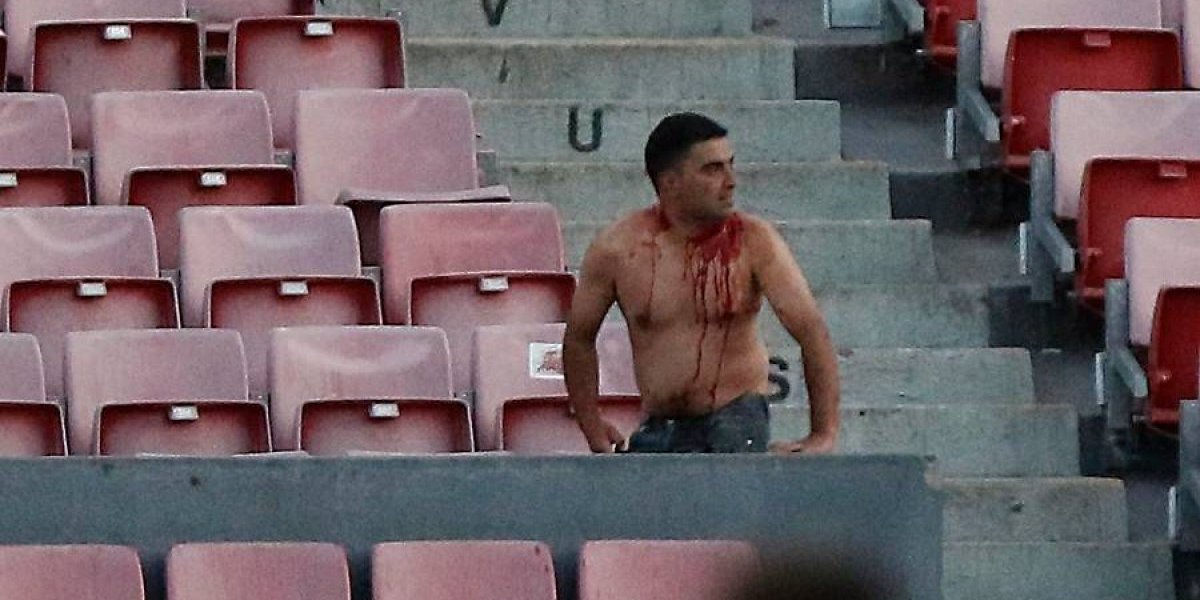 La ANFP tomará medidas por la violencia de los hinchas en la Supercopa