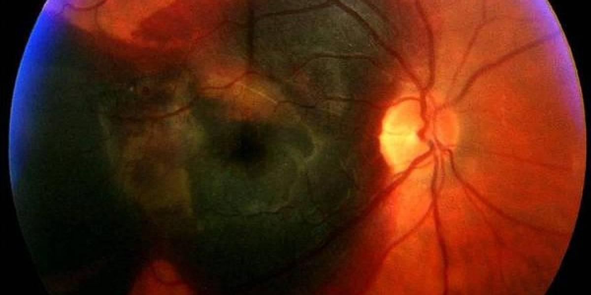 Tratamiento con células madre busca detener la ceguera