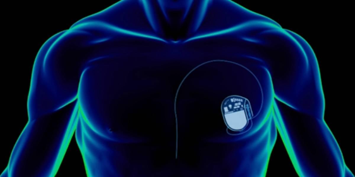 Piratas informáticos podrían tomar control de los implantes físicos