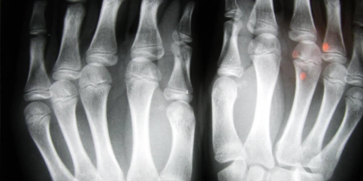 España: Se hacen demasiadas radiografías y muchas sin motivo