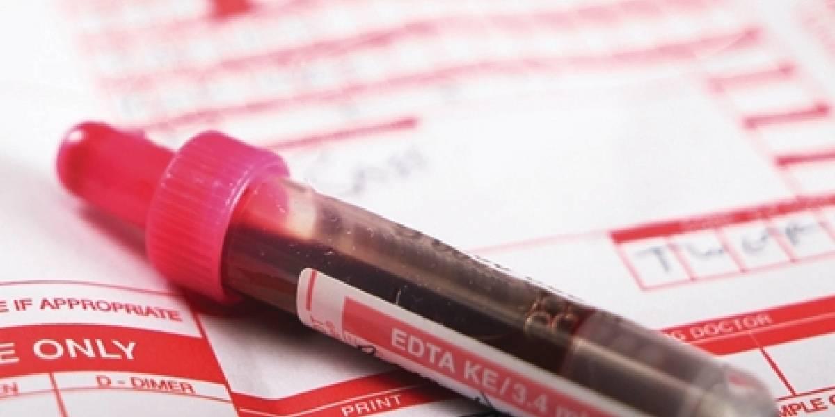 Nuevo examen de sangre detecta la esquizofrenia y va por más enfermedades psiquiátricas