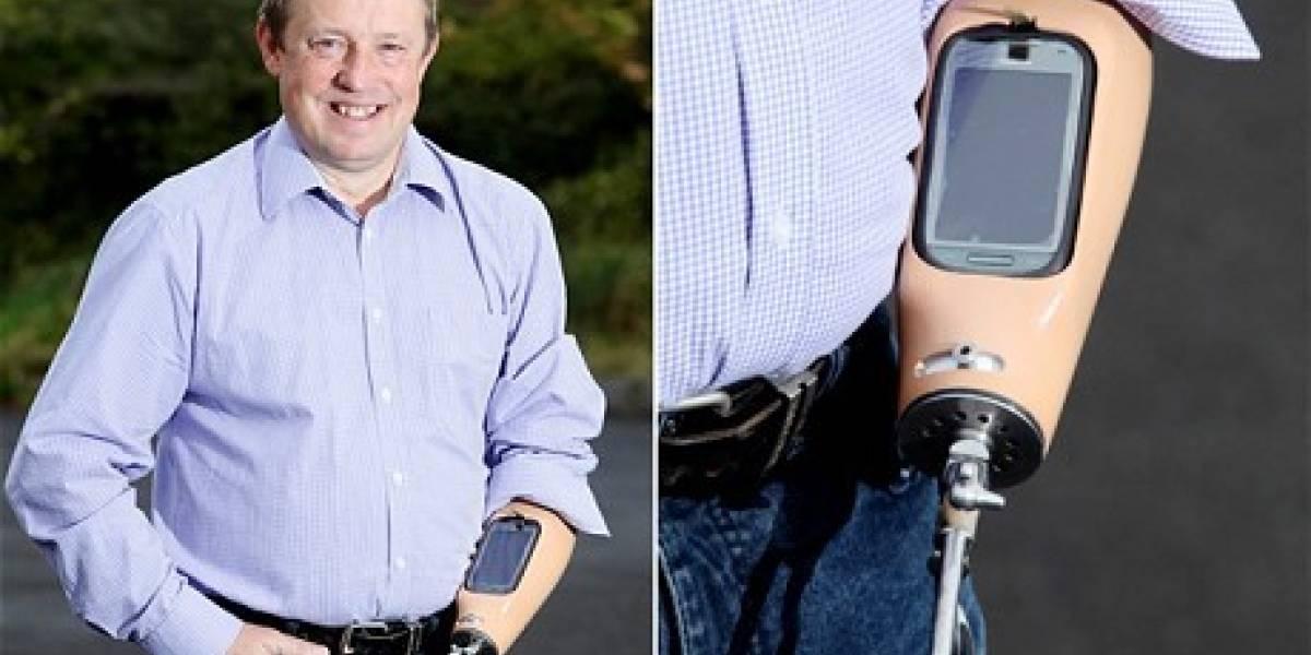 Británico recibe sistema inteligente en su protésis