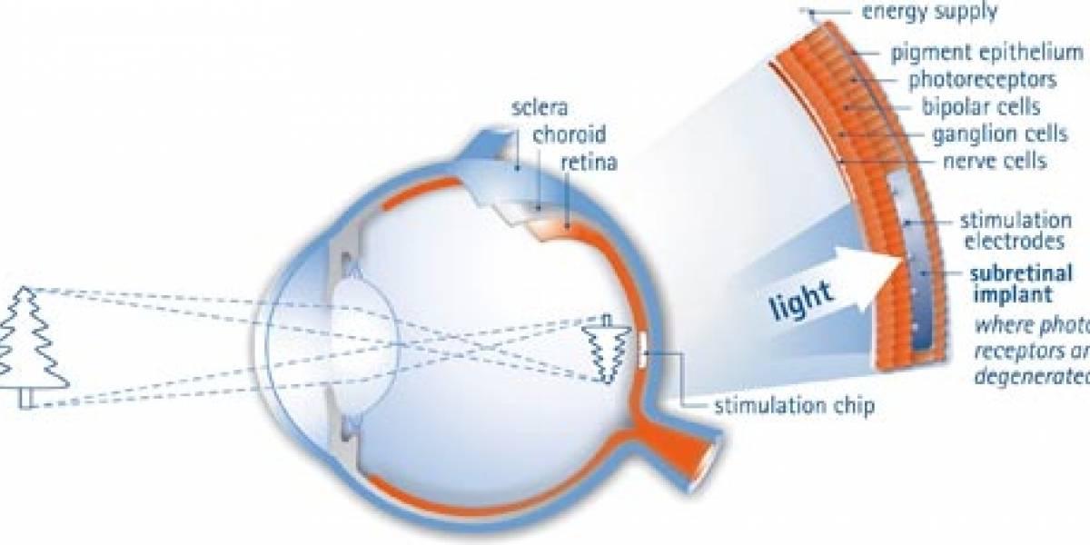 Chip como Implante retinal permite devolver la vista