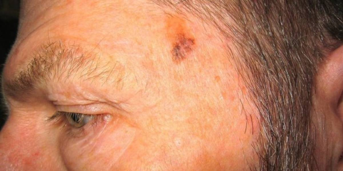 Primeras pruebas revelan que aplicación para detectar melanomas es más certera que los médicos