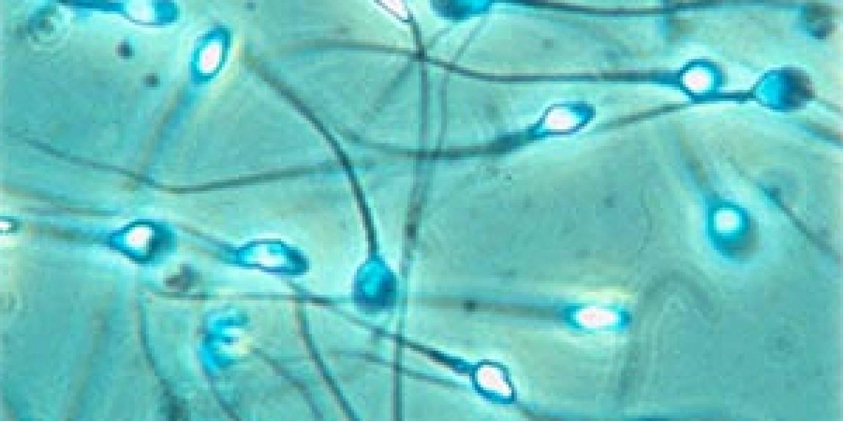 ¿Mujeres fabricando su propio esperma?