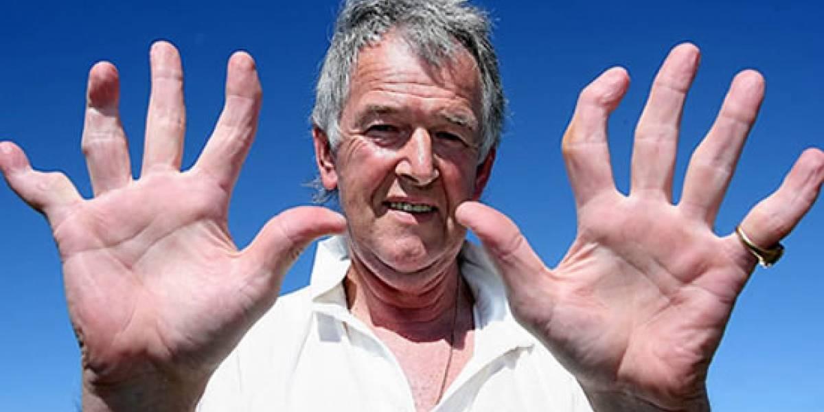 Por jugar mucho videojuegos, puedes deformar tus dedos