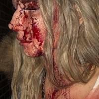 Mujer atacada con botella