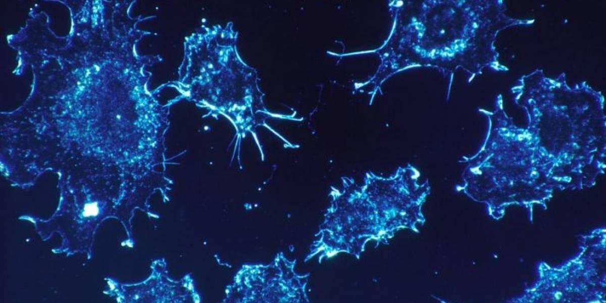 Inteligencia Artificial detecta cáncer con 86% de acierto