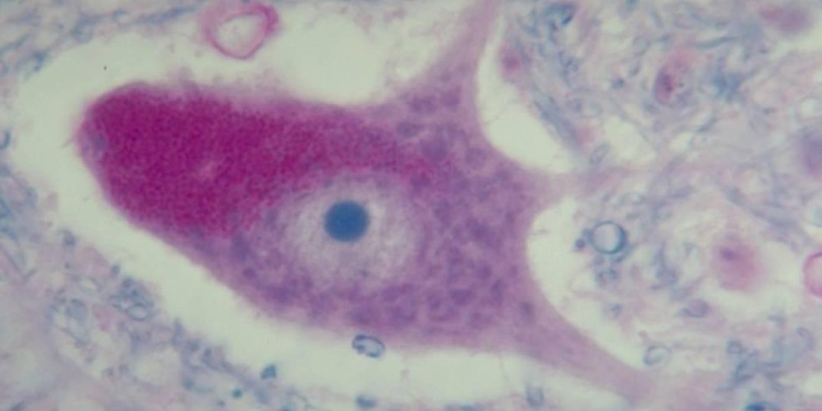 Científicos logran crear neuronas a partir de muestras de sangre