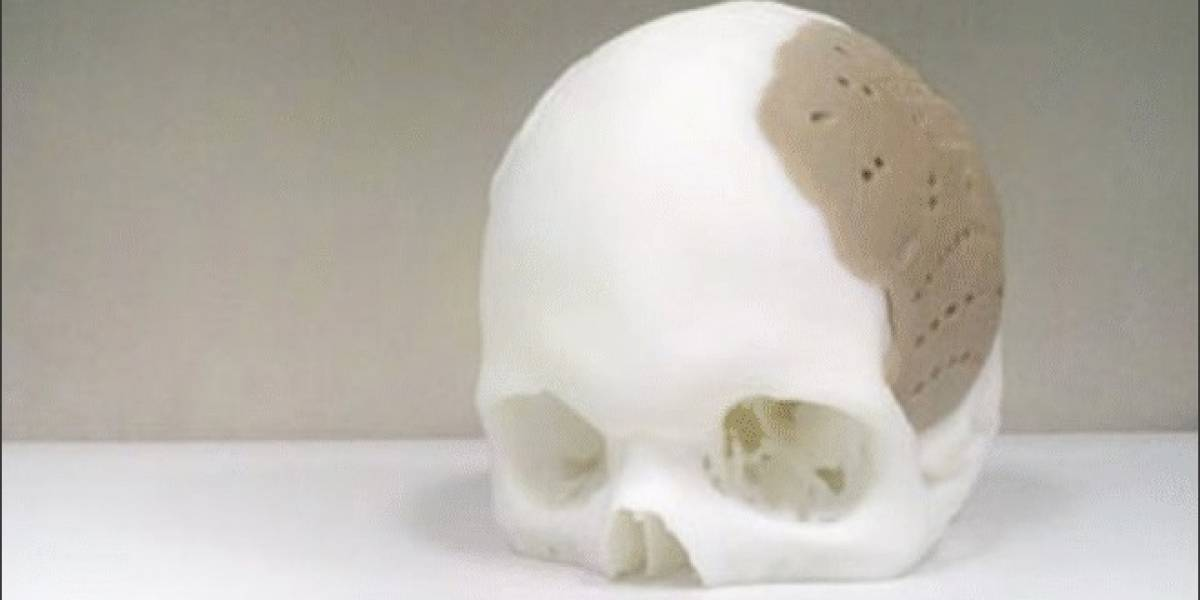 OsteoFab: Implante impreso en 3D permite remplazar el 75% del cráneo de un paciente