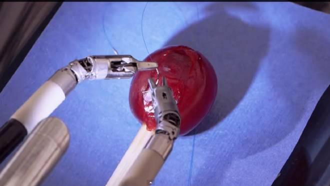 Médicos logran crear pistola de pegamento para reemplazar los puntos de sutura