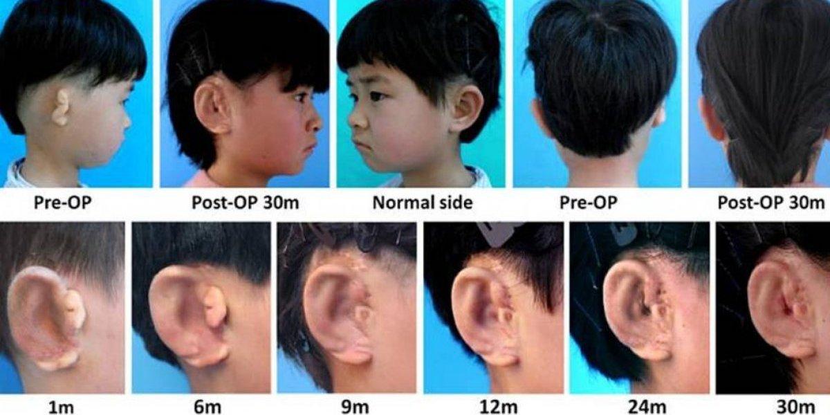Científicos logran hacer crecer orejas en niños a partir de sus células