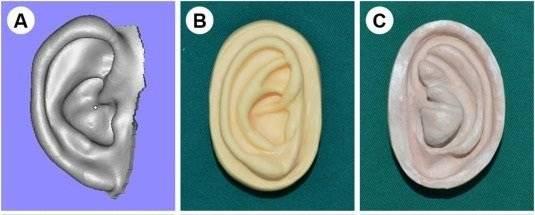 Cientistas escanearam as orelhas e transferiram os dados para a impressora 3D, criando um molde novo (Foto: Reprodução/EBioMedicine)