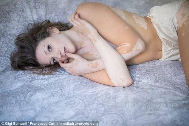Modelo Con Vitíligo Posa Desnuda Para Llevar El Mensaje De