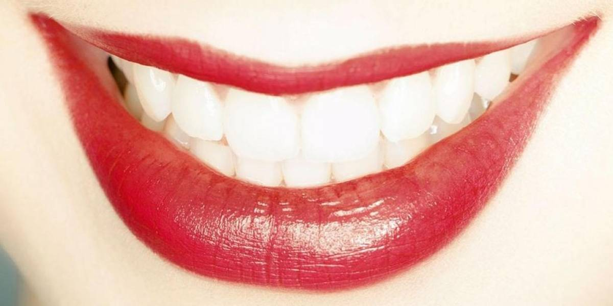 Por que ter os dentes brancos não significa necessariamente que estejam saudáveis