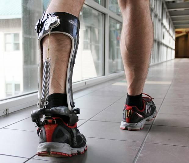 Nueva cirugía de transferencia de nervios puede ayudar a recuperar el movimiento en pacientes que han sufrido parálisis