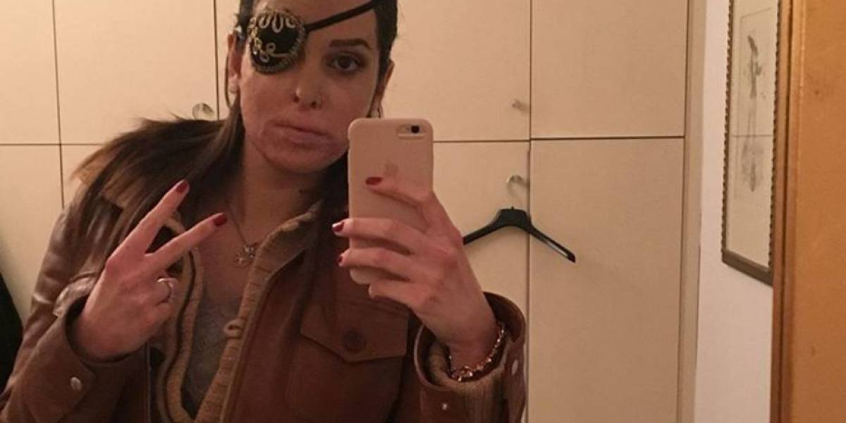 Ex-miss atacada com ácido retorna às passarelas na Itália