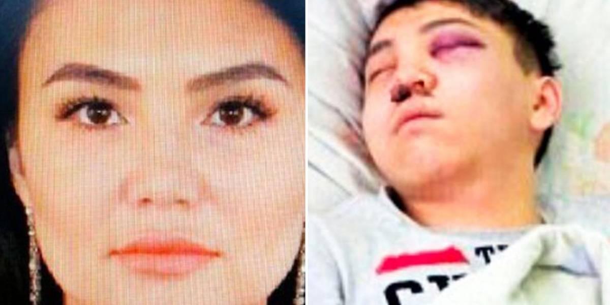 Durmió a su novio en un juego sexual para cortarle los testículos con un bisturí