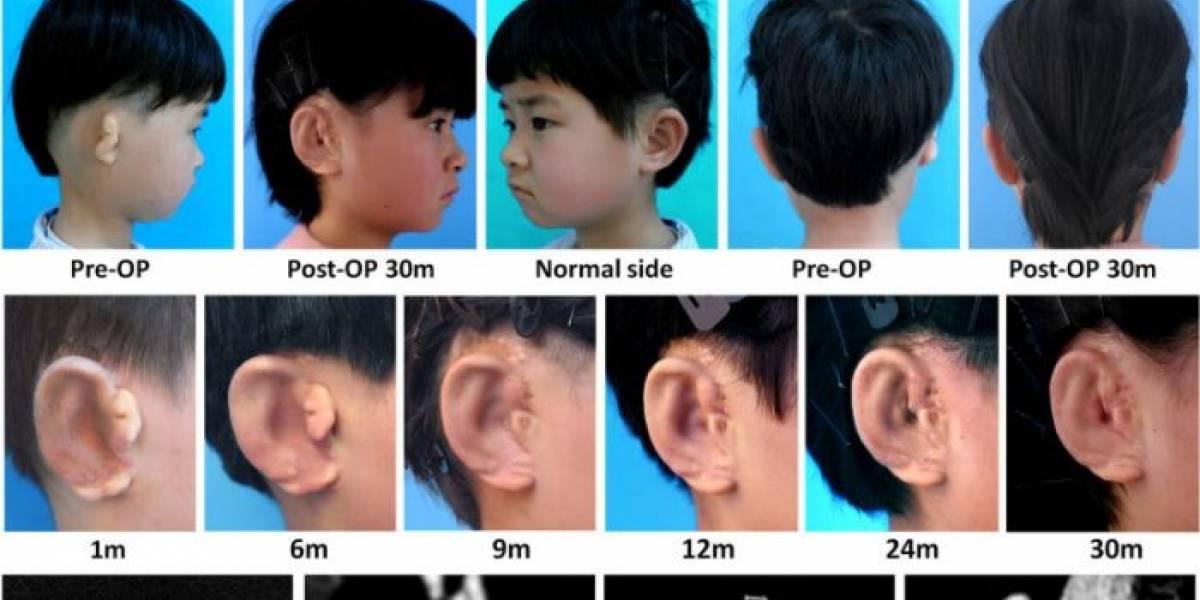 Niños chinos obtienen injertos de orejas hechos con sus propias células