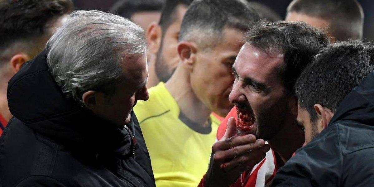 VIDEO: Diego Godín pierde tres dientes en partido de futbol