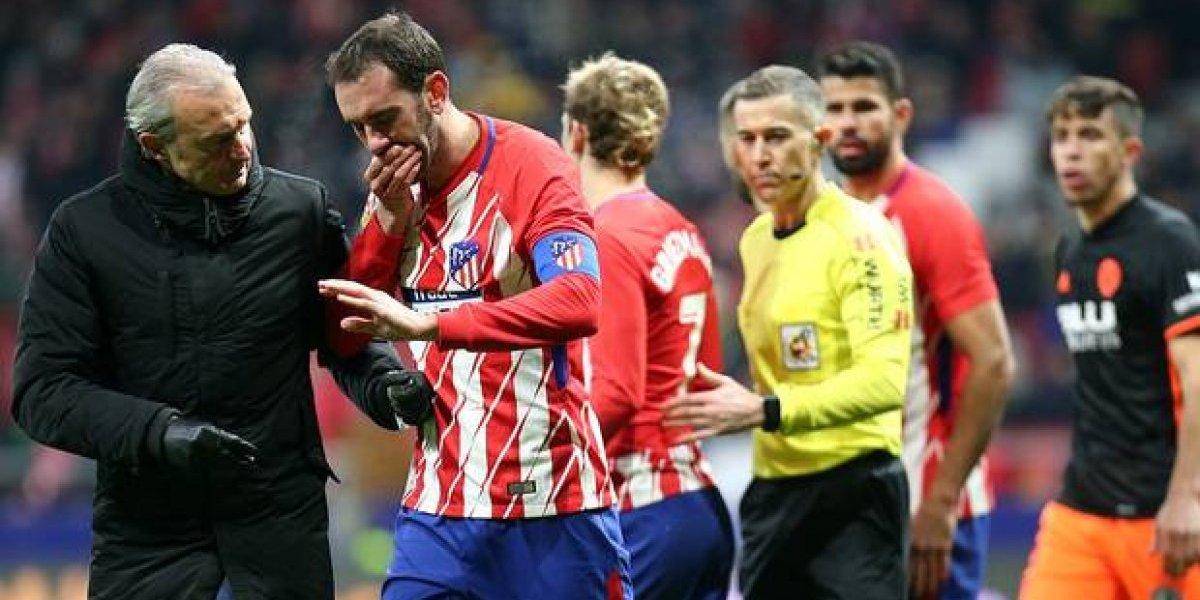 Diego Godín vuelve con humor tras perder tres piezas dentales