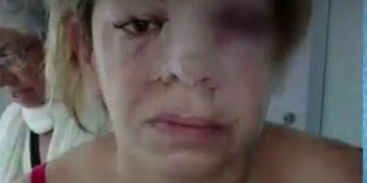 Hombre le desfiguró el rostro a su pareja con el pico de una botella