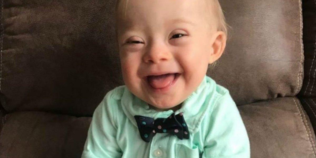 Presentan al primer bebé Gerber con síndrome de Down