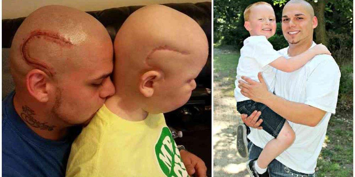 A emocionante despedida do pai que tatuou cicatriz do filho do com câncer