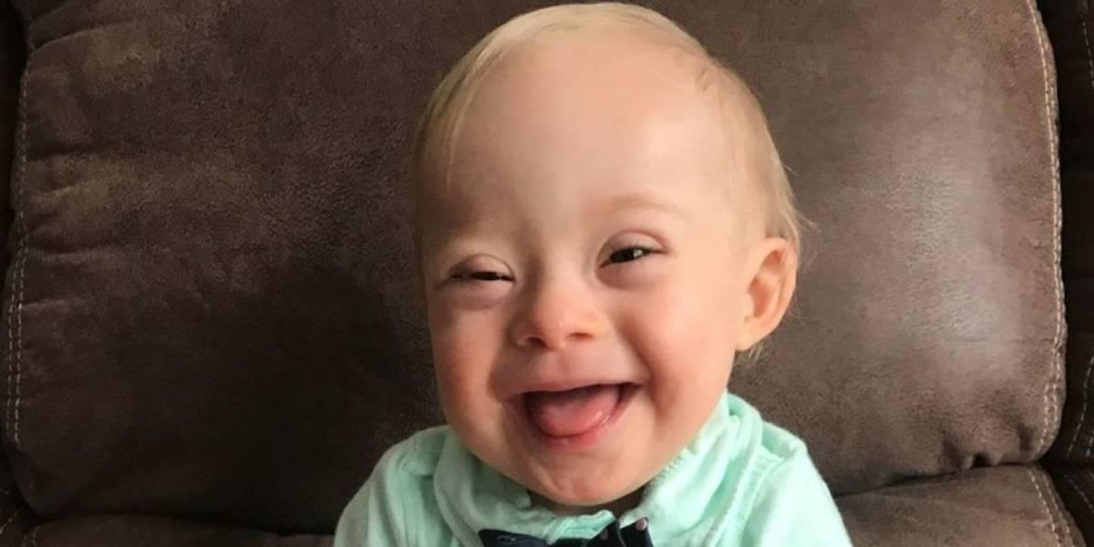 Bebé con síndrome down gana concurso Gerber