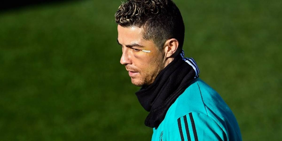 Se viraliza una foto de la cicatriz que le quedó a Cristiano Ronaldo en el rostro