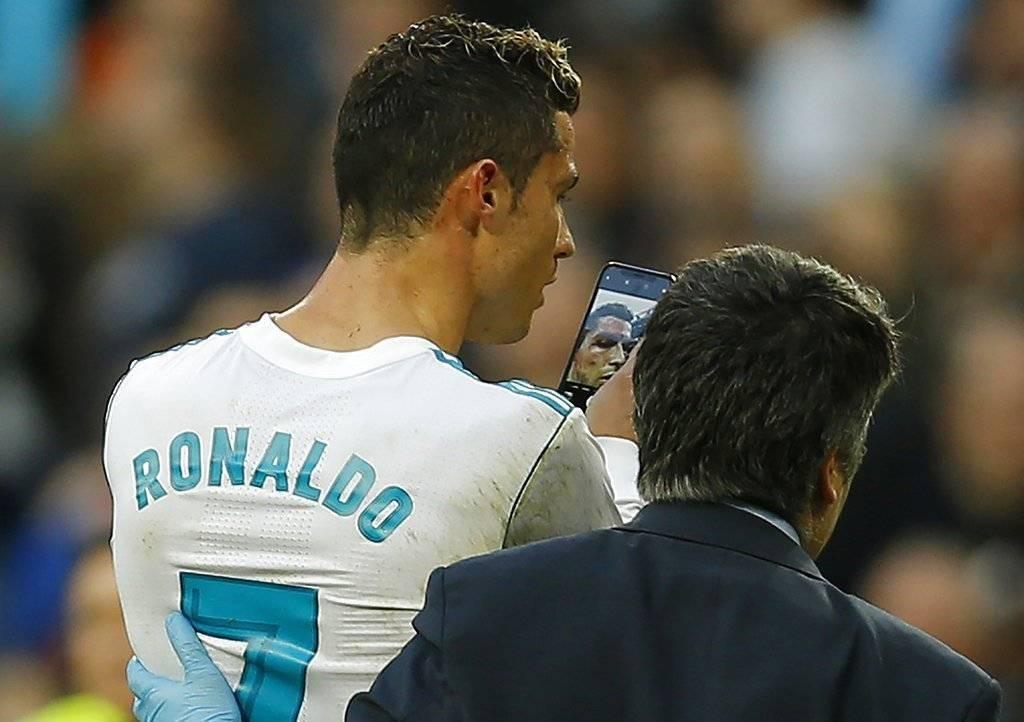 Cristiano Ronaldo sangrando contra el Deportivo La Coruña