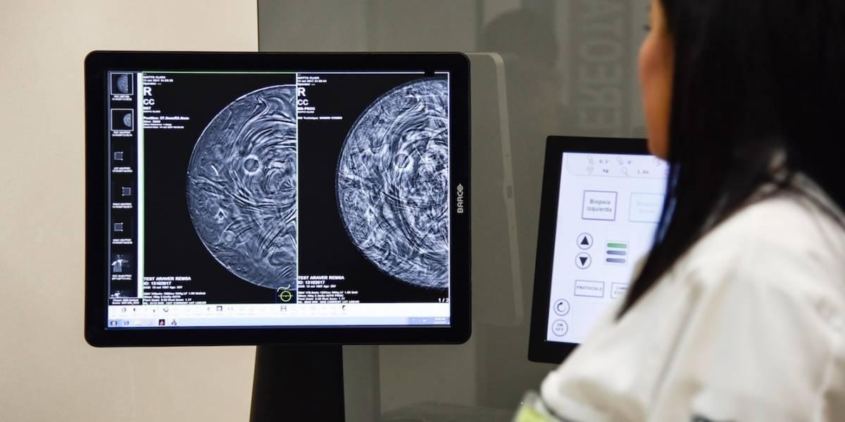 Gastos por cáncer llegan hasta 90 mdp, por paciente: AMIS