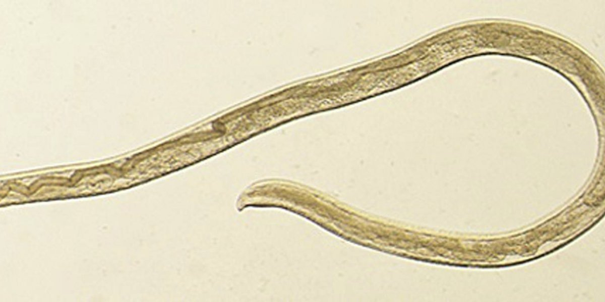 El primer caso humano conocido: sacan del ojo de una mujer 14 gusanos de una infección parasitaria transmitida por las moscas