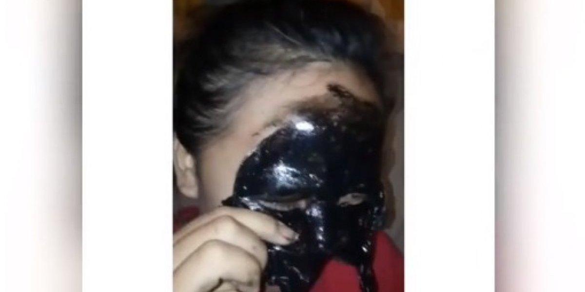 Jovem termina sem sobrancelhas ao retirar máscara para espinhas; veja