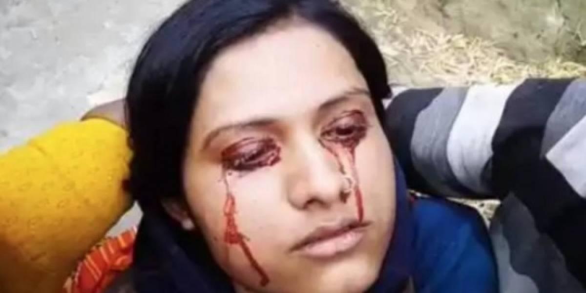 Hombre deja a su esposa y la llama 'bruja' por llorar sangre