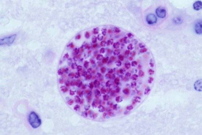 toxoplasmagondiitissuecystinmousebrain660x550.jpg