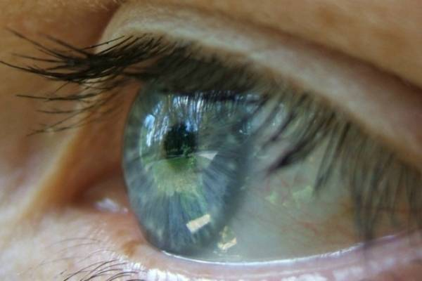 cómo evitar tener los ojos hinchados por la mañana