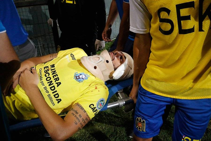 Paulo Garcés debió salir del campo a los 20