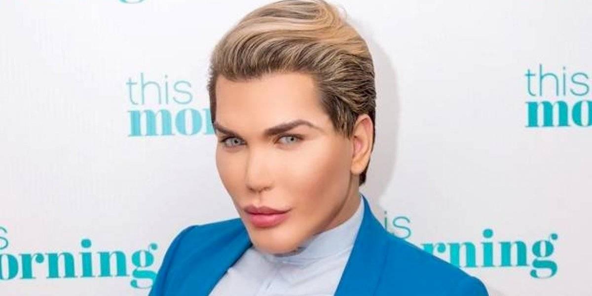 """Por esta foto aseguran que """"Ken humano"""" podría perder su nariz"""