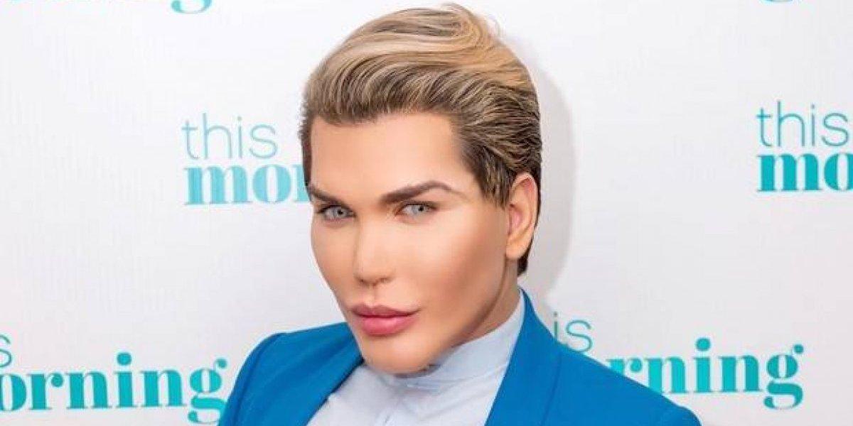 Publican foto del rostro de Ken humano antes de sus 190 cirugías