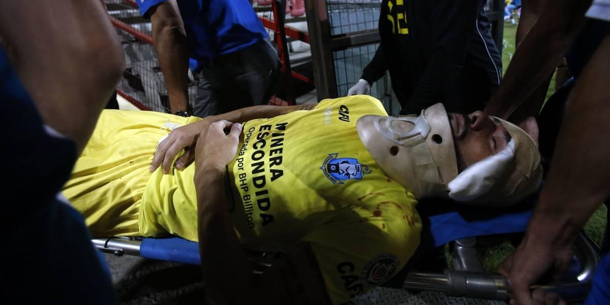 Antofagasta pierde a su figura: Paulo Garcés sufre fractura nasal tras fuerte choque con Sebastián Jaime