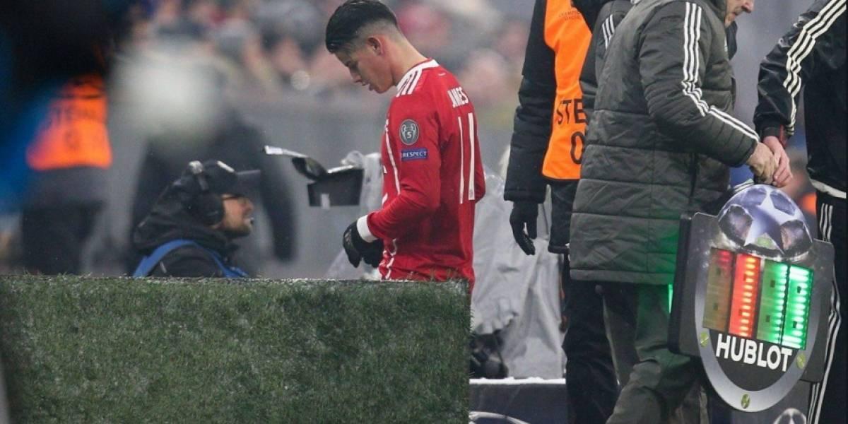 James Rodríguez debió salir por un golpe del partido de Champions League