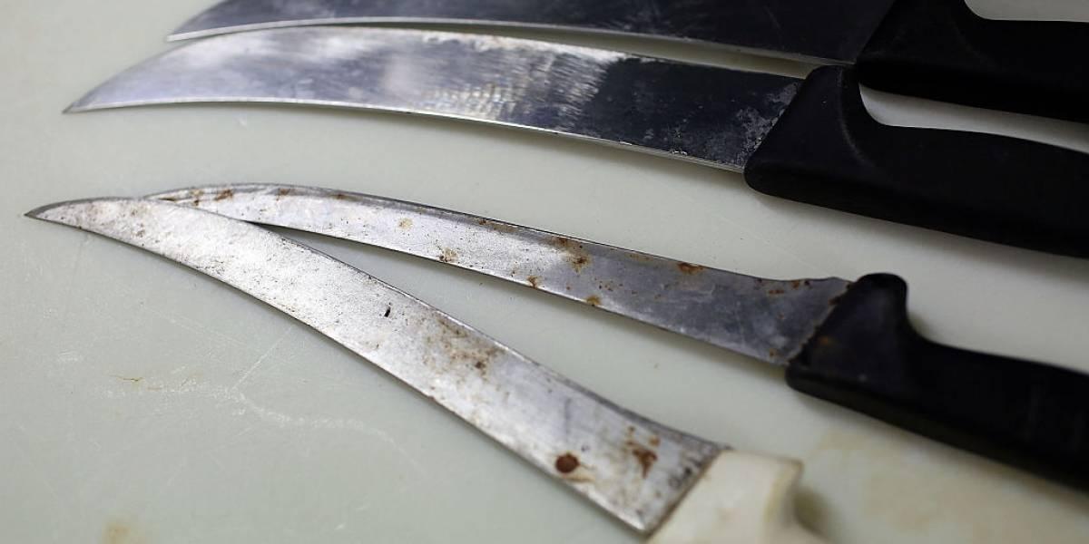 """Los Andes: profesora le enterró un cuchillo en la mano a su hijo """"porque no le hacía caso"""""""