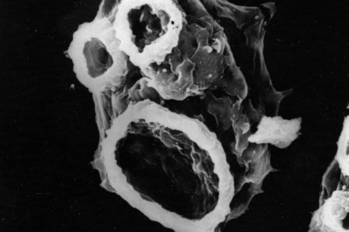 ameba naegleria fowleri chile