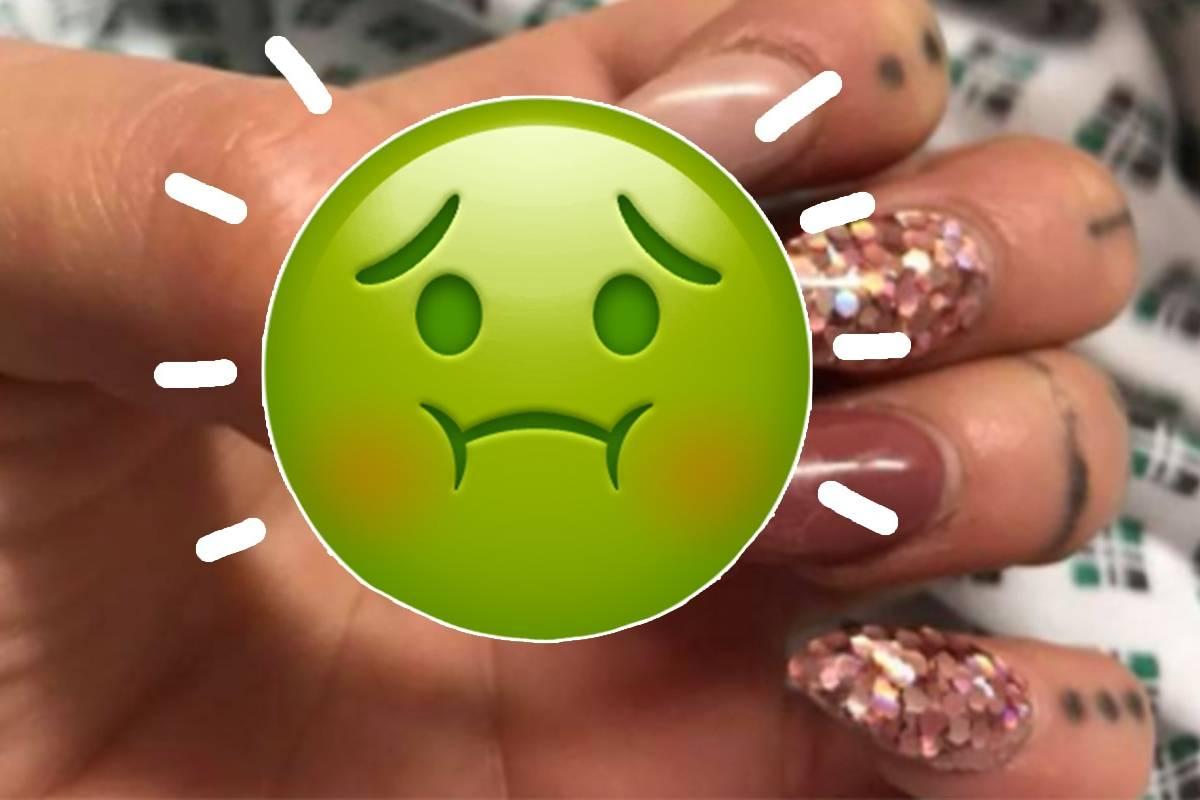 Viral. mujer casi pierde dedo luego de una infección por uñas ...